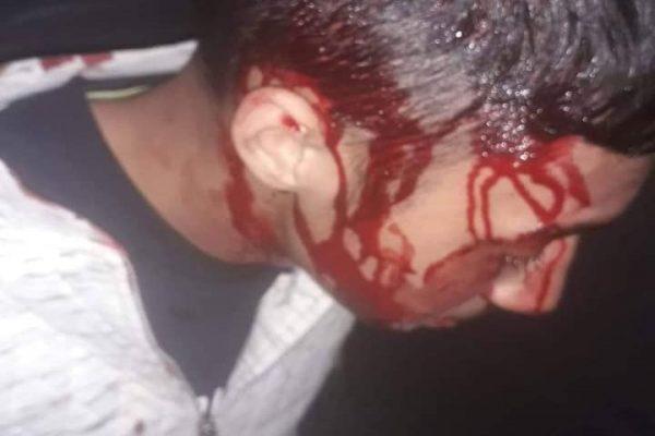 Accident de circulatie incheiat cu un scandal monstru in zona locuita de catre romi. Jandarmii sunt acuzati ca ar fi batut un minor!
